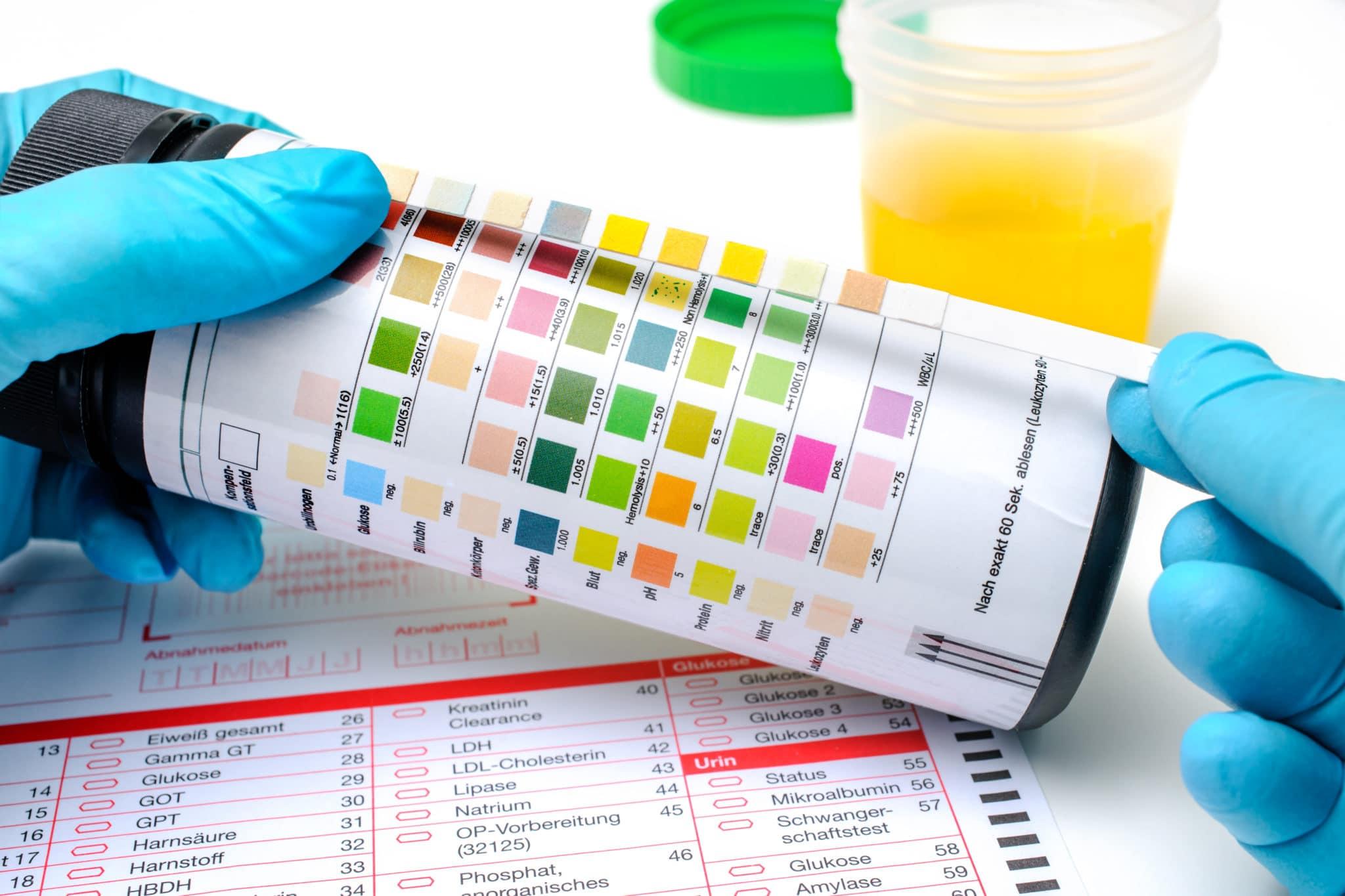 CBD drug test using urine sample